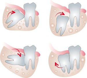 Impacted_wisdom_tooth
