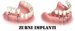 Implant-retained-bridge-copy