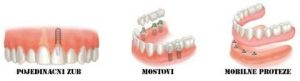 dental-implants-scenarios-copy