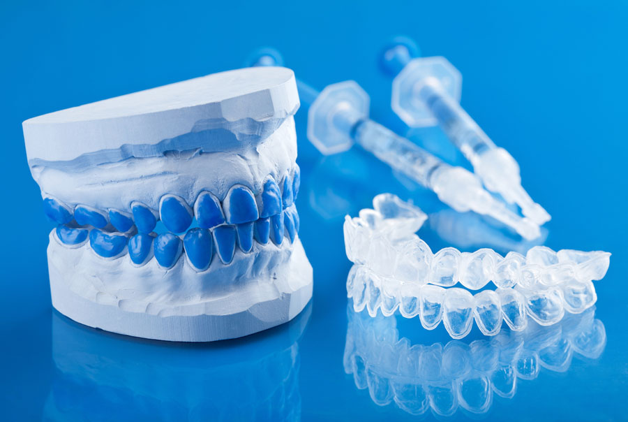 izbeljivanje zuba gelom