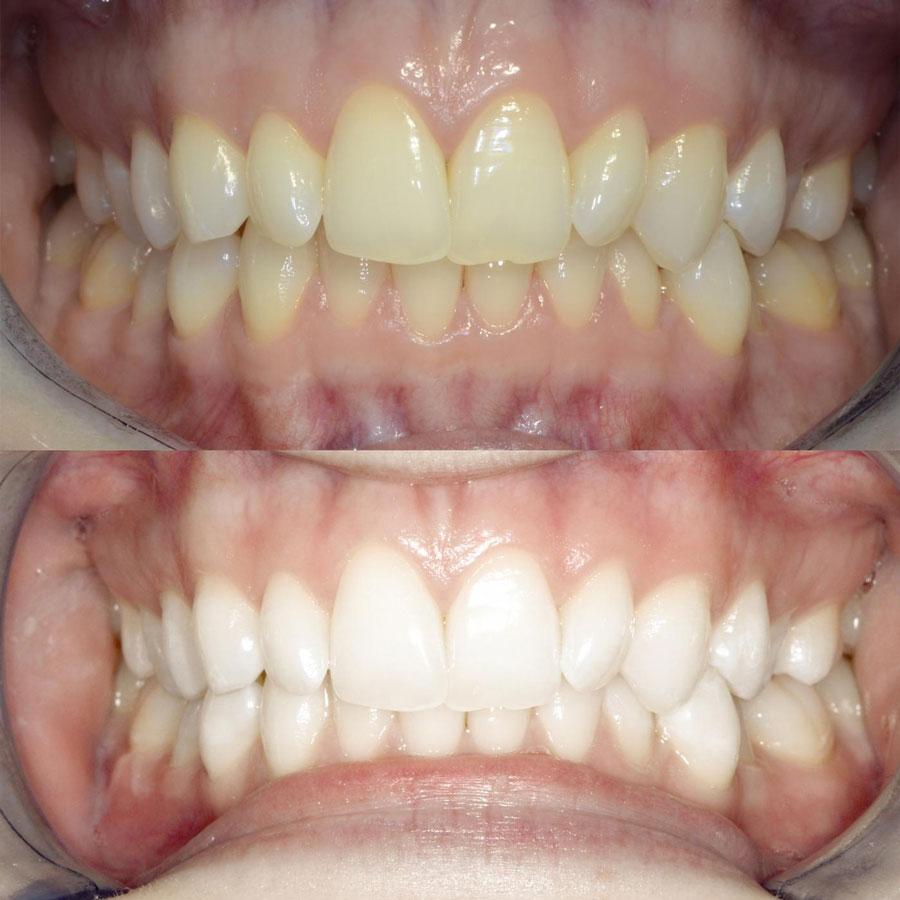 beljenje zuba - beljenje zuba gelom efekti